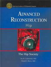 Advanced Reconstruction - Hip