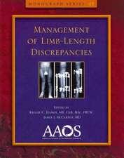 Management of Limb-Length Discrepancies