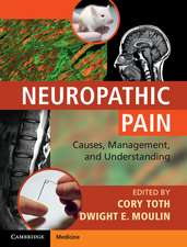 Neuropathic Pain: Causes, Management and Understanding