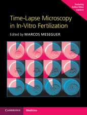 Time-Lapse Microscopy in In-Vitro Fertilization Hardback with Online Resource
