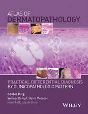 Atlas of Dermatopathology: Practical Differential Diagnosis by Clinicopathologic Pattern