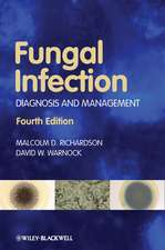 Fungal Infection: Diagnosis and Management