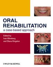 Oral Rehabilitation: A Case–Based Approach