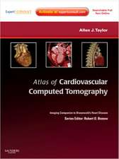 Atlas of Cardiovascular Computed Tomography: Expert Consult - Online and Print: Imaging Companion to Braunwald's Heart Disease