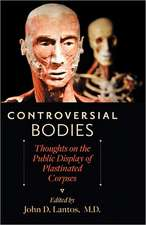 Controversial Bodies – Thoughts on the Public Display of Plastinated Corpses