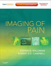 Imaging of Pain: Expert Consult Online Features and Print