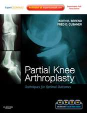 Partial Knee Arthroplasty: Techniques for Optimal Outcomes with DVD; Expert Consult - Online & Print