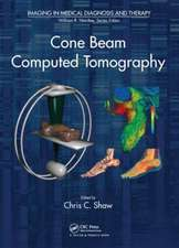 Cone Beam Computed Tomography