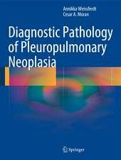 Diagnostic Pathology of Pleuropulmonary Neoplasia