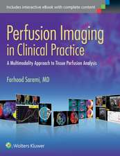 Perfusion Imaging in Clinical Practice: A Multimodality Approach to Tissue Perfusion Analysis