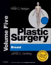 Plastic Surgery: Volume 5: Breast (Expert Consult Online and Print)