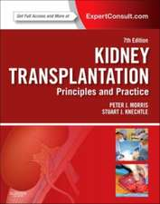 Kidney Transplantation - Principles and Practice: Expert Consult - Online and Print