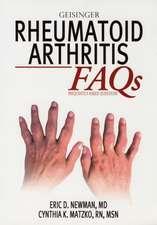 Rheumatoid Arthritis FAQ's