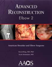 Advanced Reconstruction: Elbow 2