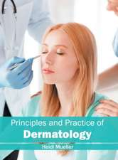 Principles and Practice of Dermatology