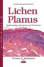 Lichen Planus: Epidemiology, Symptoms & Treatment