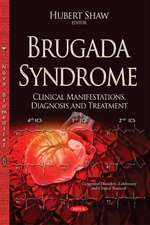 Brugada Syndrome: Clinical Manifestations, Diagnosis & Treatment