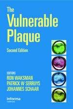 The Vulnerable Plaque