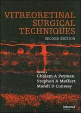 Vitreoretinal Surgical Techniques