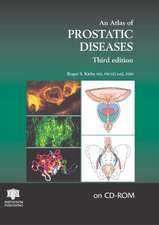 Kirby, R: An Atlas of Prostatic Diseases