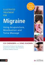 Illustrated Treatment for Migraine Using Acupuncture, Moxibustion and Tuina Massage [With DVD]:  Energy, Mind and Spirit in Traditional Medicines of China and East and Southeast Asia