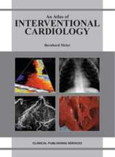 An Atlas of Investigation and Therapy: Interventional Cardiology