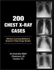 200 Chest X-Ray Cases