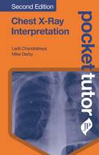 Pocket Tutor Chest X-Ray Interpretation: Second Edition