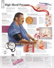 High Blood Pressure Chart: Laminated Wall Chart