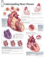 Understanding Heart Disease Chart: Wall Chart