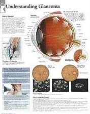 Understanding Glaucoma Chart: Wall Chart