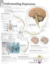 Understanding Depression Laminated Poster