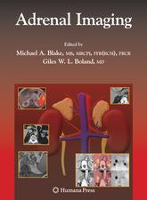 Adrenal Imaging