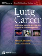 Lung Cancer:  A Multidisciplinary Approach to Diagnosis and Management