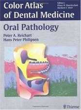 Color Atlas of Dental Medicine - Oral Pathology