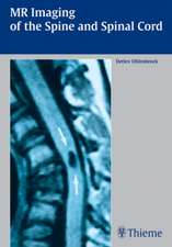 MR Imaging of the Spine and Spinal Cord