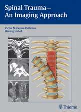 Spinal Trauma - An Imaging Approach