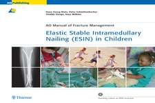 Elastic Stable Intramedullary Nailing (ESIN) in Children