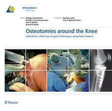 Osteotomies around the Knee: Indications-Planning-Surgical Techniques using Plate Fixators
