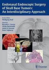 Endonasal Endoscopic Surgery of Skull Base Tumors: An Interdisciplinary Approach