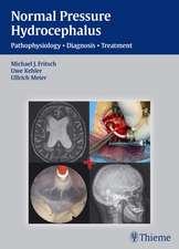 NPH - Normal Pressure Hydrocephalus: Pathophysiology - Diagnosis - Treatment