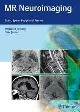 MR Neuroimaging