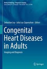 Congenital Heart Diseases in Adults: Imaging and Diagnosis