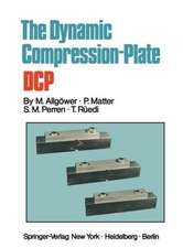 The Dynamic Compression Plate DCP