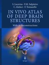 In Vivo Atlas of Deep Brain Structures: With 3D Reconstructions