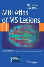MRI Atlas of MS Lesions