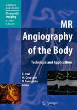 MR Angiography of the Body: Technique and Clinical Applications