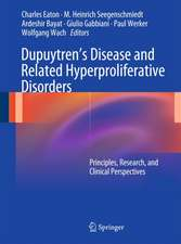 Dupuytren's Disease and Related Hyperproliferative Disorders: Principles, Research, and Clinical Perspectives