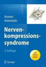 Nervenkompressionssyndrome