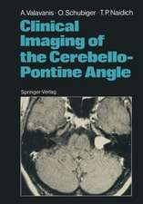 Clinical Imaging of the Cerebello-Pontine Angle